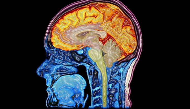 ဦးဏှောက်အမြှေးရောင်ဘေး အထင်မသေးနဲ့